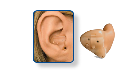 Half Shell - HS - Hearing Aid Style - Shreveport, LA - The ENT Center, AMC