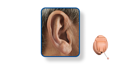Invisible In The Canal - IIC - Hearing Aid Style - Shreveport, LA - The ENT Center, AMC