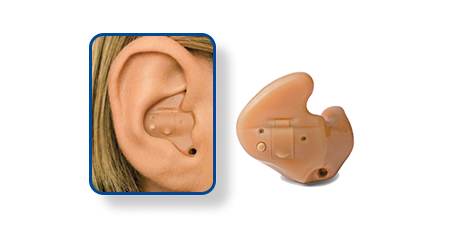 Full Shell or In the Ear - ITE - Hearing Aid Style - Shreveport, LA - The ENT Center, AMC